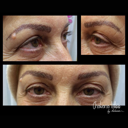 alopecia-eyebrows-pmu2-sp
